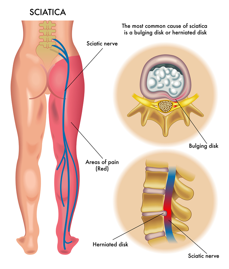 medical illustration of symptoms of the sciatica